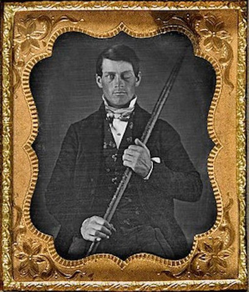 300px-phineas_gage_cased_daguerreotype_wilgusphoto2008-12-19_enhancedretouched_color1